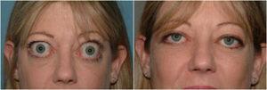 Thyroid disease eyes